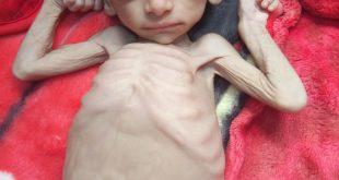الحديدة : تواصل احتدام المعارك رغم التحذيرات من كارثة إنسانية