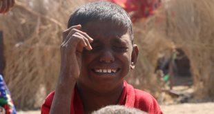 هذا هو حال أطفال #الحديدة جراء #الحرب !!