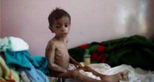 الحديدة : مؤسسة الشعب تدشن مشروع مكافحة سوء التغذية للأطفال