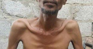 برنامج الغذاء العالمي: مجاعة طاحنة تدق أبواب اليمن
