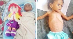 اليمن يجوع !! بقلم / محمد جميح