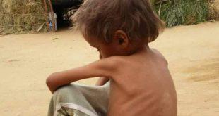 اليمن : شـبح المجاعة يهدد الأطفال