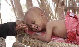 الحديدة: الأطفال……ضحايا سوء التغذية..
