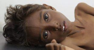 الحديدة : شاهد بالصورة .. طفل أنهكتة #الحرب يناشد المجتمع الدولي التدخل لإيقاف الحرب