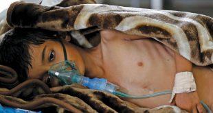 تعز : ارتفاع الحالات المشتبه إصابتها بالكوليرا إلى 10 آلاف حالة ووفاة 44 شخص ً