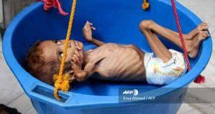 الخارجية الأمريكية: يعاني 2 مليون طفل يمني من سوء التغذية