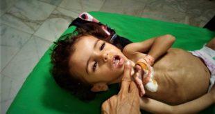 اليمن: كل ١٠ دقائق يموت طفل