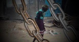 الحديدة : حصار الدريهمي .. سادية التحالف ..وانتهاك صارخ لحقوق الانسان