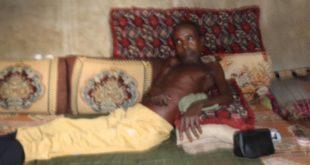 """""""الإعاقة المهلكة"""" في الحديدة: إعاقة أب تقضي على أحلام أسرته"""